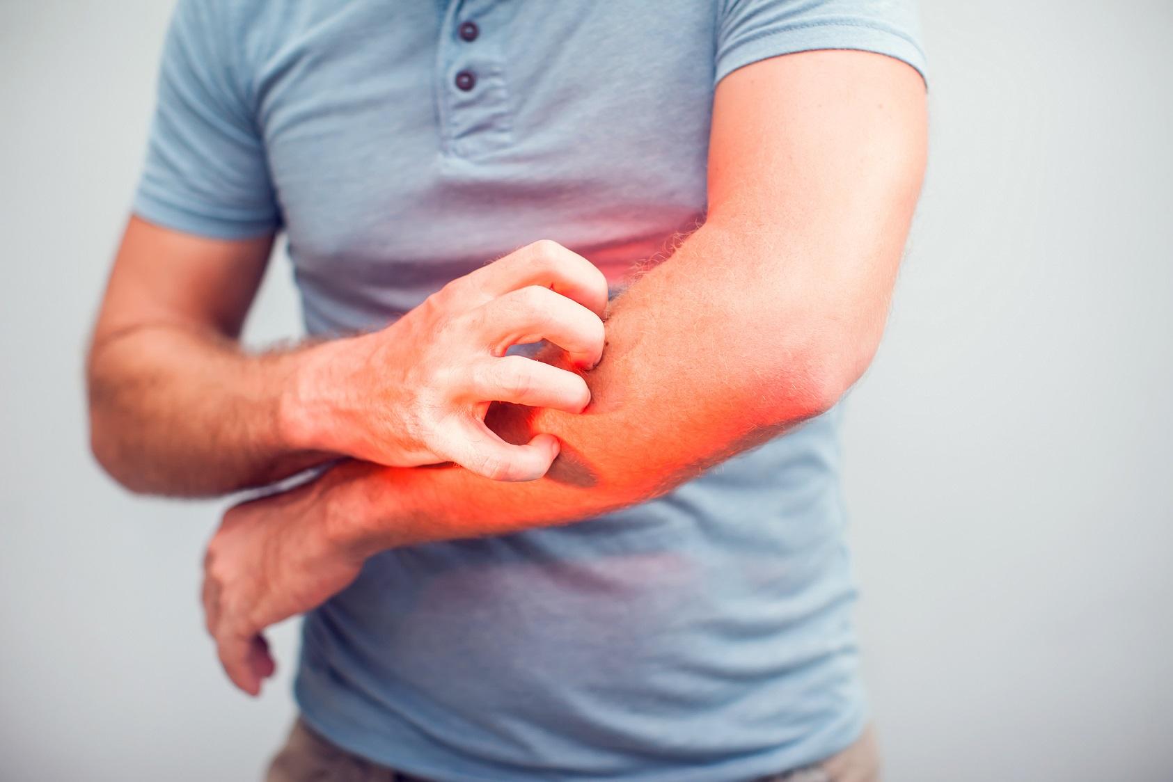 Eczema clinical trial at MAC
