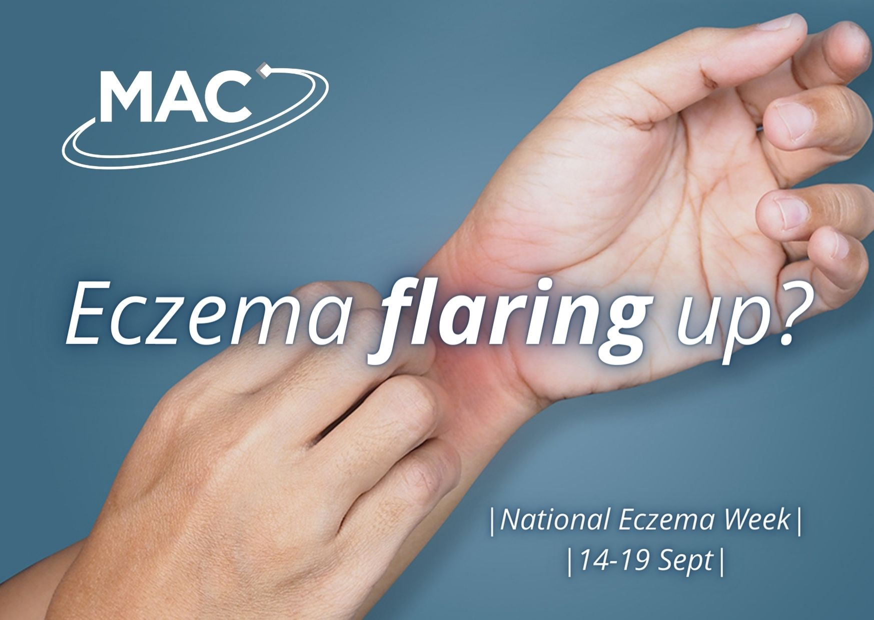 Eczema flare up and itching
