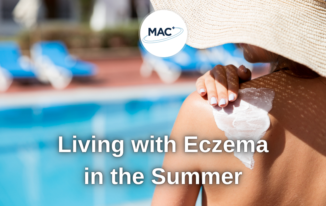 Living with Eczema in the summer